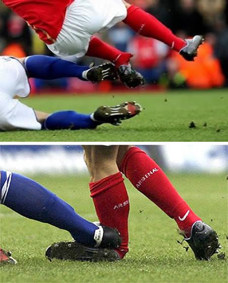 <strong>Esas jugadas desafortunadas que el deporte más lindo también tiene.</strong>